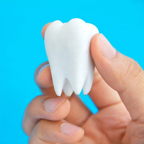 Extracción de dientes sin solución