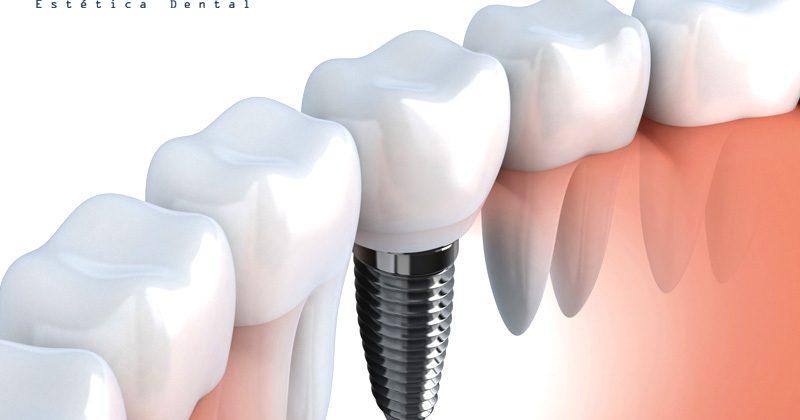Implantes dentales en Guayaquil, la Mejor Calidad.