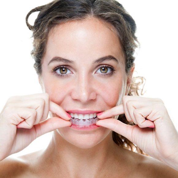 Ortodoncia Invisible | El tratamiento de corrección dental digital más avanzado y rápido del mundo