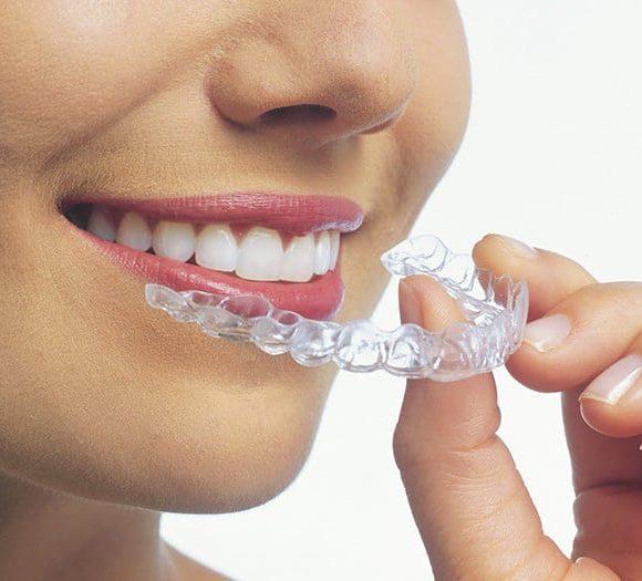 La Ortodoncia Invisible y sus incomparables beneficios